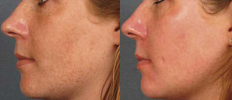 laser ipl before and after