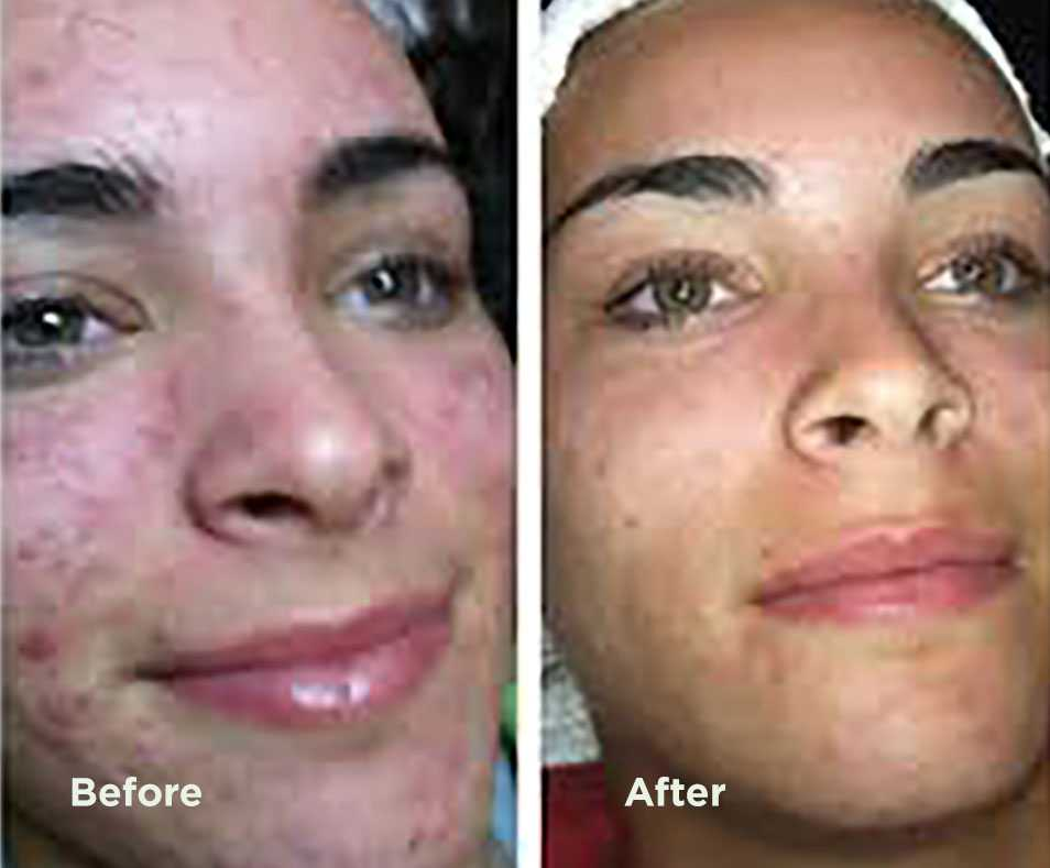 dermaplaning before and after photos