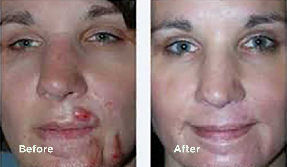 kenalog scar treatment before and after