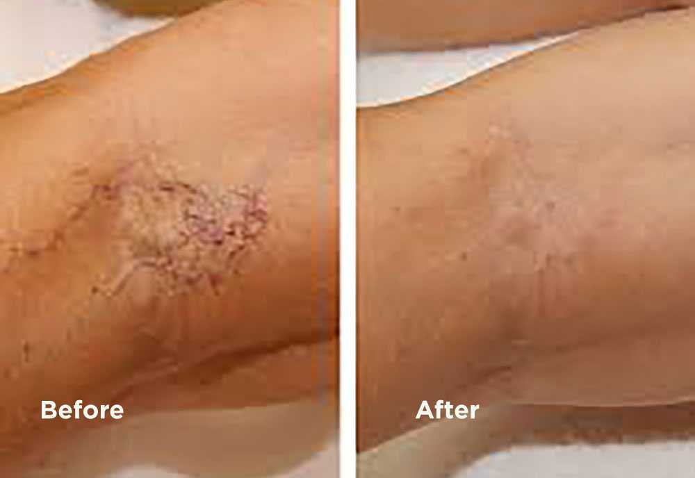 orlando skin solutions sclerotherapy